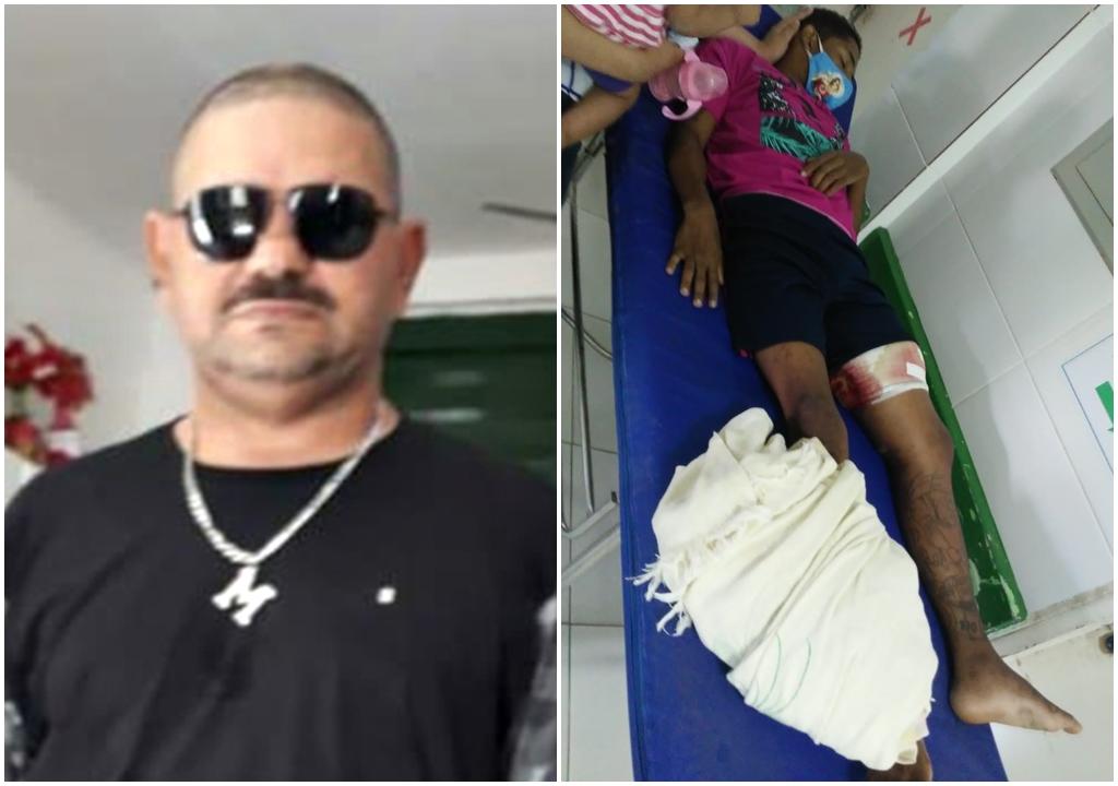 Após 10 dias, jovem procura atendimento médico e confessa que atirou em sargento da PM